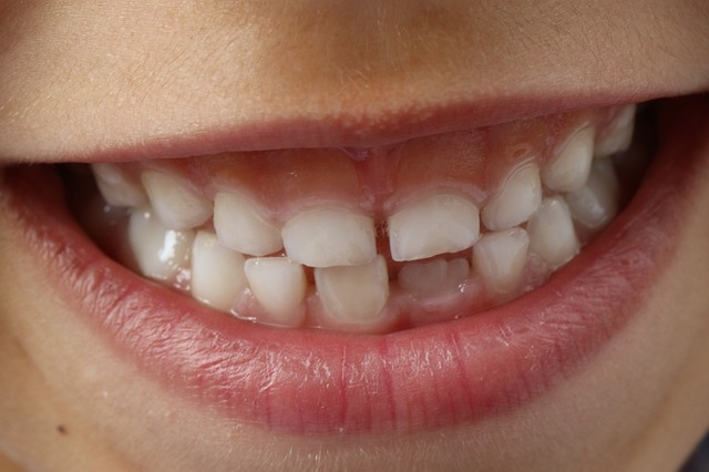 Profilaktyka ortodontyczna – co robić by Twoje dziecko nie trafiło do ortodonty